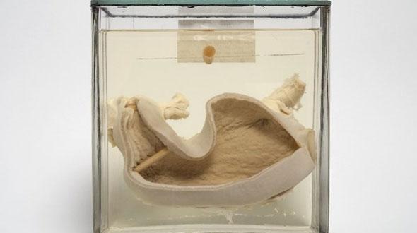 Anatomisch Museum Bleulandinum